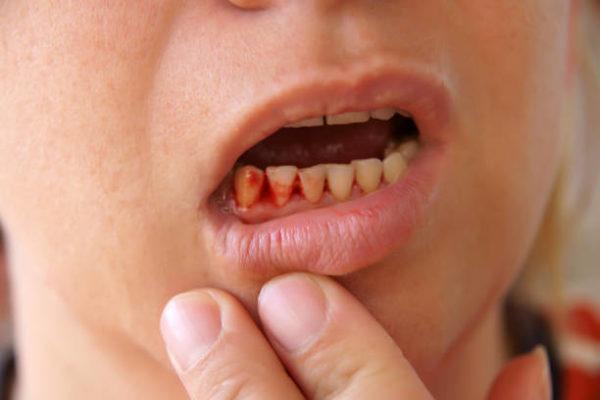 Soñar con dientes sangre