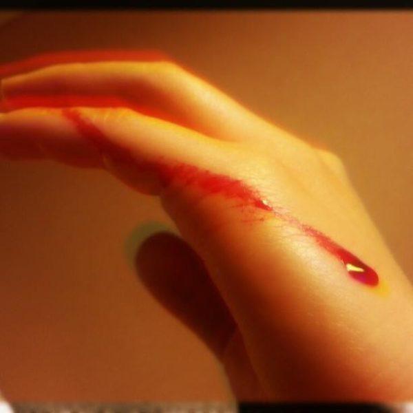 soñar-que-sangramos-de-una-herida