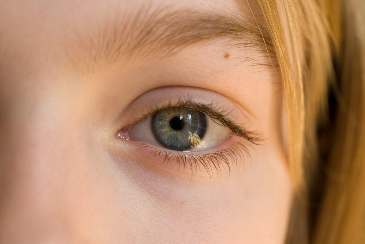significado-de-los-lunares-segun-su-ubicacion-ojos