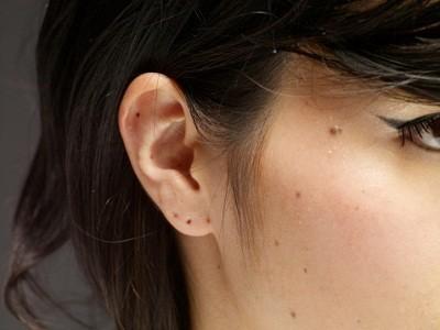 significado-de-los-lunares-segun-su-ubicacion-orejas