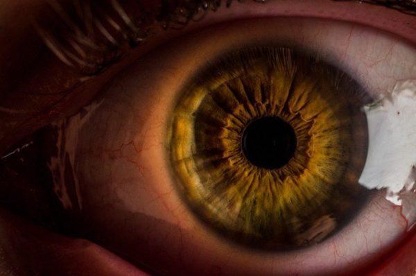 Cómo puede ayudar la iridología