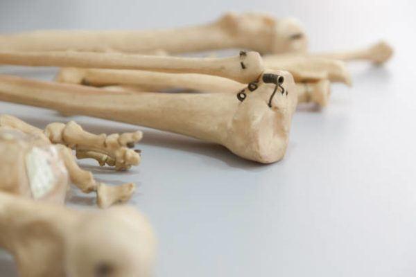 Roopkund el lago de los esqueletos historia